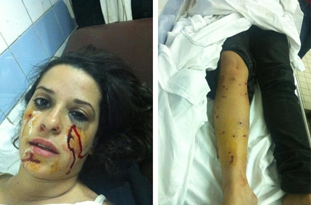 Egypt's Interior Minister proven a liar: overwhelming evidence police fired birdshot atprotesters